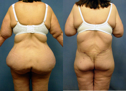 Thigh Buttock Lift - Belt Lipectomy After Massive Weight Loss Los Angeles
