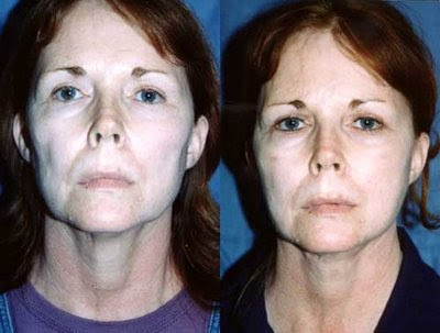 facelift with fat injection grafting