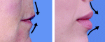 aging changes of the lips