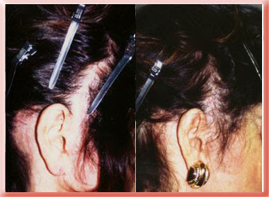 Hairgrafting after hair loss from a facelift Los Angeles