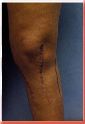 wide flat knee scar