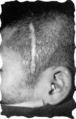 wide flat temple scar