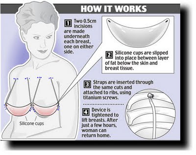 Internal Bra Breast Lift Los Angeles