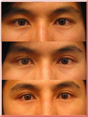 asian double lid upper eyelid surgery