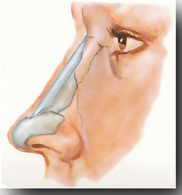 implant to treat nasal bridge ski slope