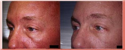 tear trough and protruding eyelid fat in a younger patient