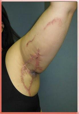 hidradenitis armpit