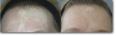 white hypopigmented scar