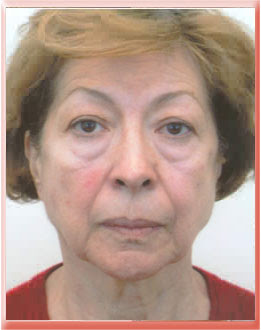 Tear trough exaggerated by protruding eyelid fat