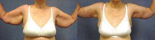 Brachioplasty - Upper Arm Lift Los Angeles