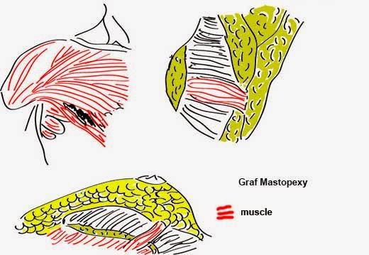 graf mastopexy