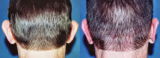 otoplasty ear pinning