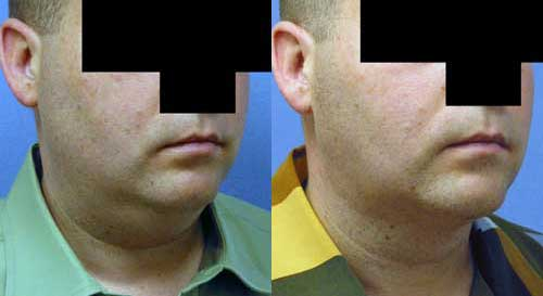 Before and After Neck Liposuction to Remove Double Chin in Los Angeles