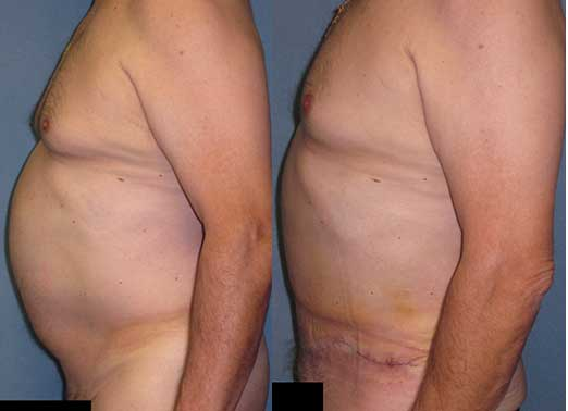 male abdominoplasty tummy tuck
