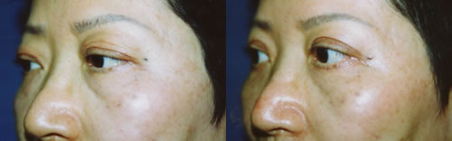 Chinese Asian Upper and Lower Eyelid Surgery Los Angeles