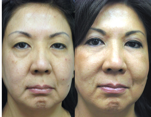 Japanese Asian Upper and Lower Eyelid Surgery Los Angeles