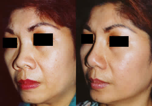 Asian Rhinoplasty Nose Surgery Los Angeles