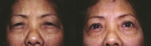 Filipino Asian Upper Blepharoplasty Los Angeles