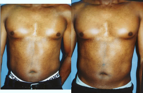 Before and After Liposuction of the Abdomen Stomach Los Angeles