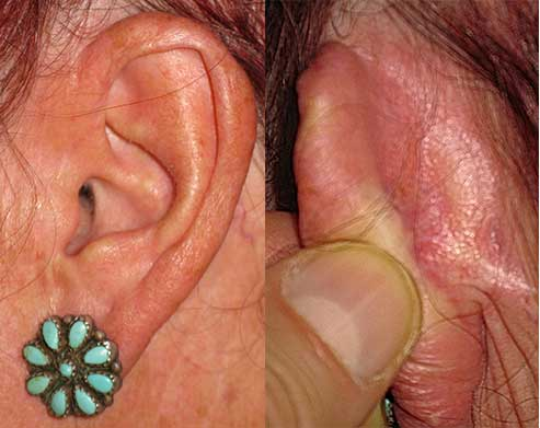 Basal Cell Carcinoma Ear Los Angeles