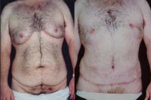 Gynecomastia Los Angeles