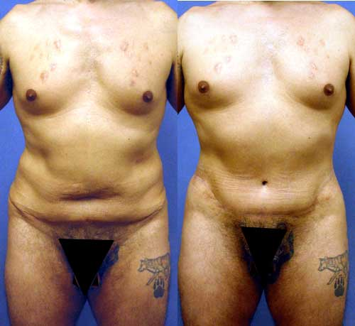 Tummy Tuck - Abdominoplasty Redo Los Angeles