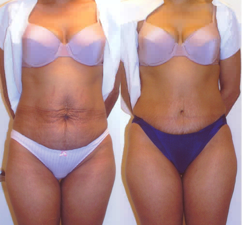 Tummy Tuck - Abdominoplasty Excess Skin Los Angeles