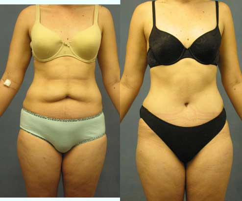 Tummy Tuck - Abdominoplasty Excess Skin & Fat Los Angeles