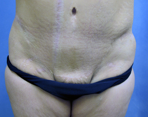 Tummy Tuck - Abdominoplasty Los Angeles