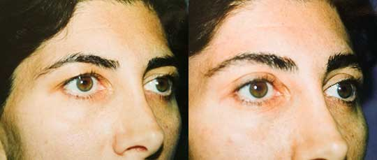 Blepharoplasty Eyelid Surgery Los Angeles