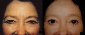 Browlift Blepharoplasty Los Angeles