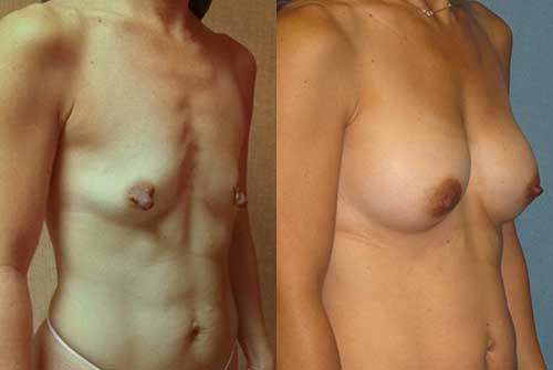 Saline Breast Implants Los Angeles