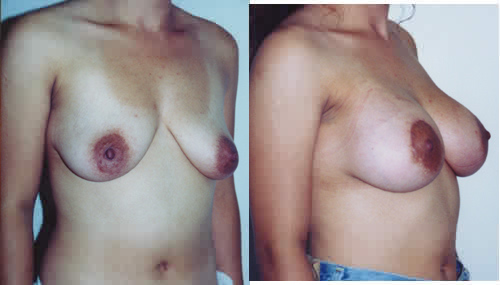 Saline Breast Implants breast enhancement Los Angeles