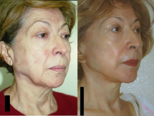 Facelift Necklift Los Angeles