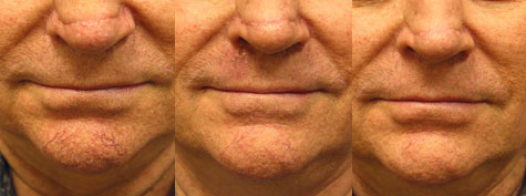 Facial Spider Vessels Telangiectasias Los Angeles