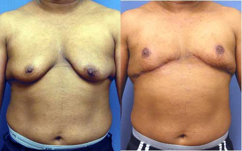 Transgender Mastectomy Los Angeles