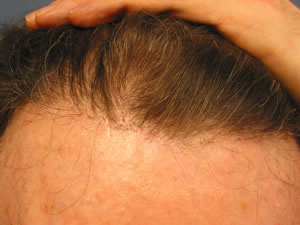 Hairgraft for Male Pattern Baldness Los Angeles