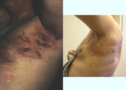 Hidradenitis Suppuritiva Armpit Los Angeles