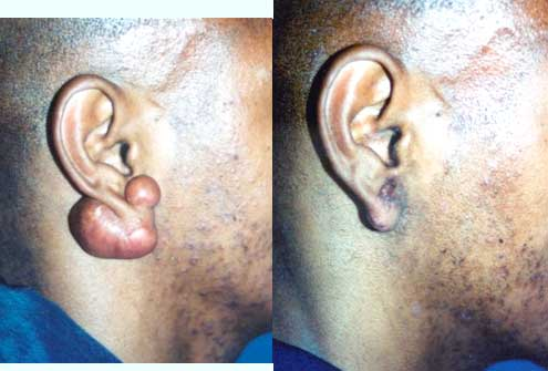 Ear Keloid Los Angeles