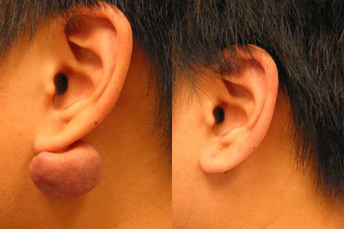 Asian Ear Keloid Los Angeles