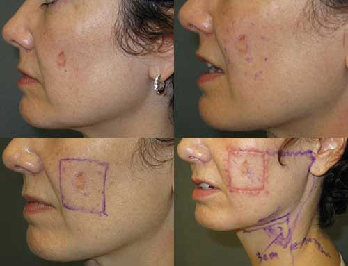 Lentigo Maligna Melanoma Cheek Los Angeles