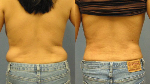 Liposuction Love Handles Los Angeles
