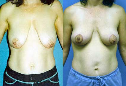 Mastopexy Breast Lift Los Angeles
