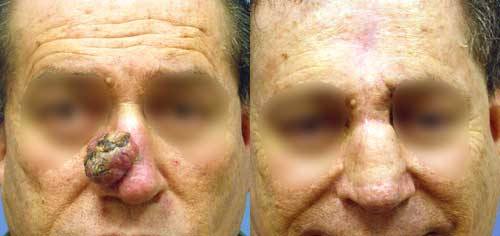 Basal Cell Carcinoma Nose Los Angeles