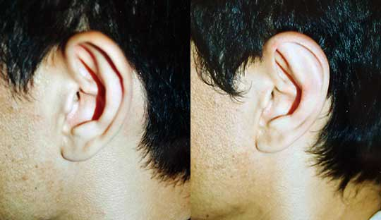 Otoplasty - Ear Pinning Los Angeles