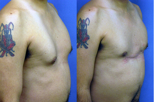 Pectus Excavatum - Funnel Chest Los Angeles