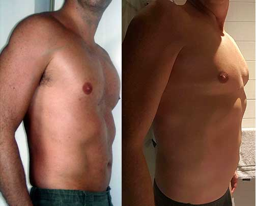 Pectus Excavatum - Funnel Chest Los Angeles 1 & 11 Years After Surgery