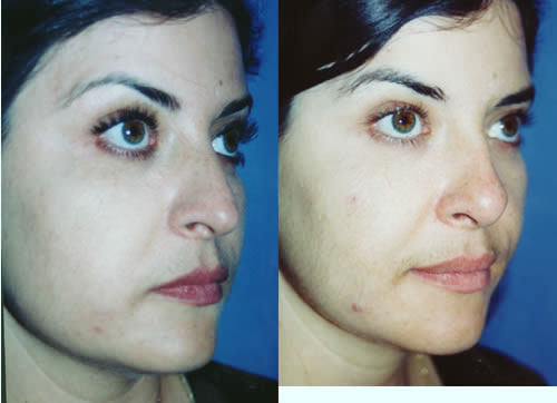 Rhinoplasty Nasal Surgery Nose Job Los Angeles