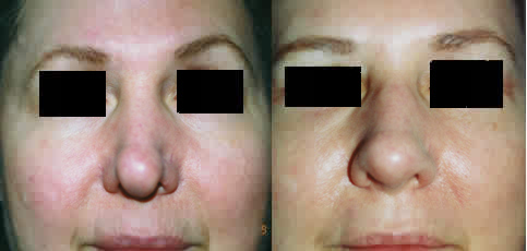 Revision Rhinoplasty Los Angeles