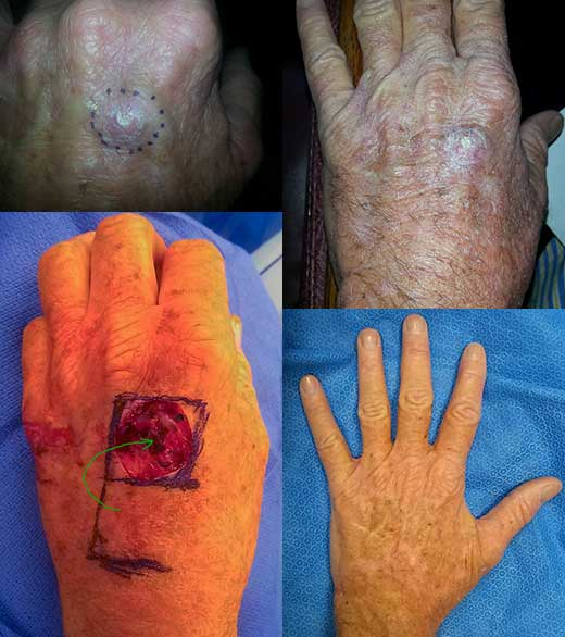 squamous cell carcinoma hand Los Angeles